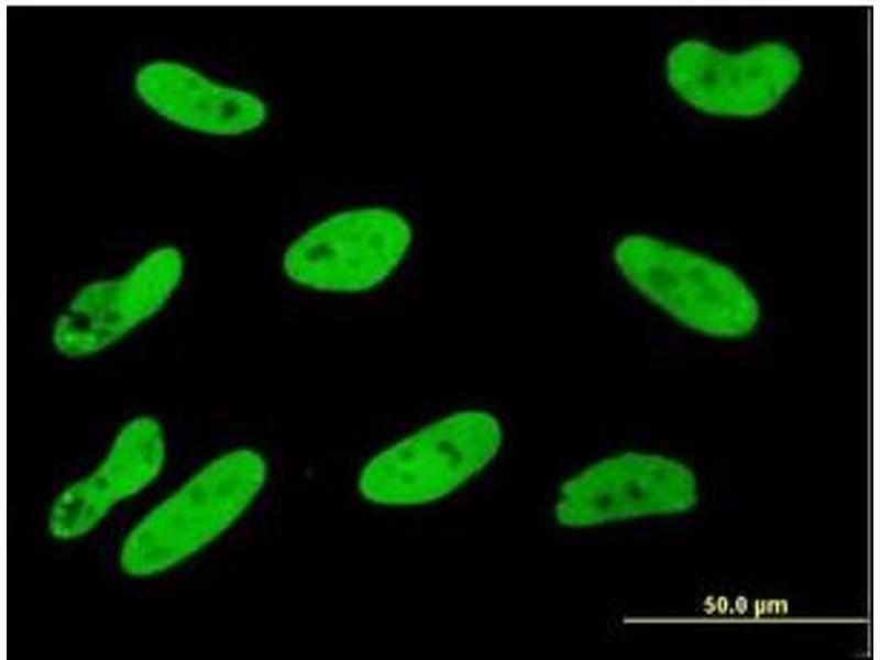 Immunofluorescence (IF) image for anti-SGK1 antibody (serum/glucocorticoid Regulated Kinase 1) (ABIN781841)