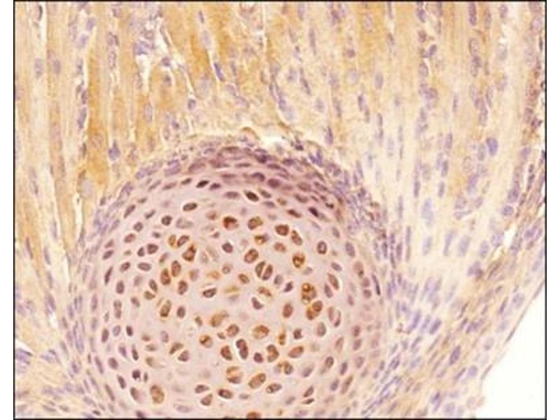 Immunohistochemistry (Paraffin-embedded Sections) (IHC (p)) image for anti-Tenascin C (TNC) (Domain B) Antikörper (ABIN259023)