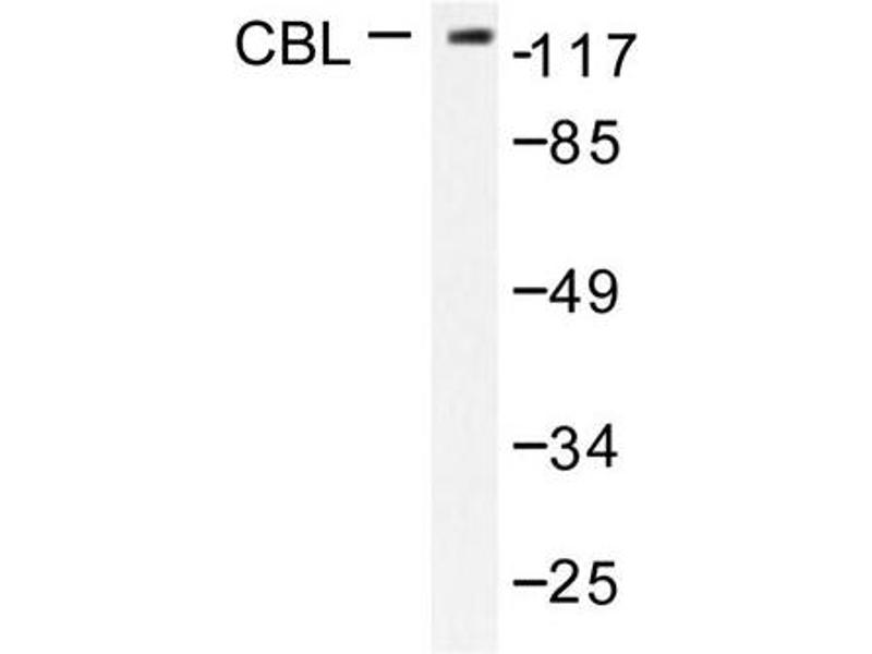 image for anti-CBL antibody (Cas-Br-M (Murine) Ecotropic Retroviral Transforming Sequence) (ABIN271926)