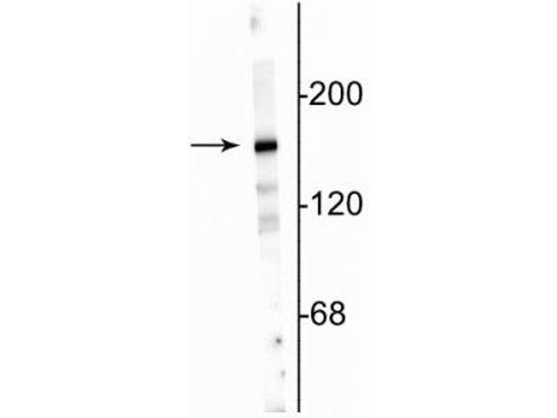 Western Blotting (WB) image for anti-Glutamate Receptor, Ionotropic, N-Methyl D-Aspartate 2a (GRIN2A) (N-Term) antibody (ABIN361397)