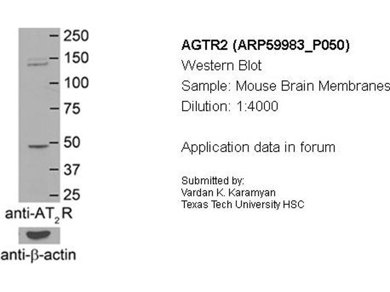 Western Blotting (WB) image for anti-Angiotensin II Receptor, Type 2 (AGTR2) (N-Term) antibody (ABIN2788290)