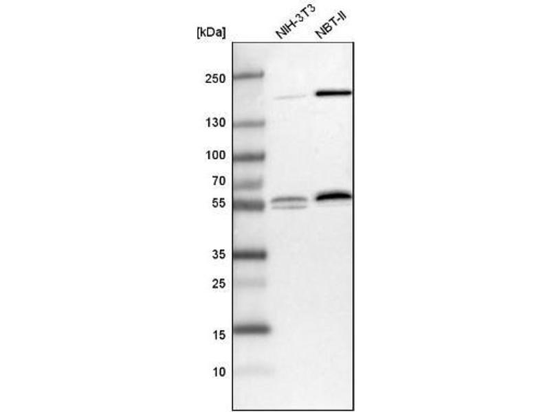 Western Blotting (WB) image for anti-RanBP-Type and C3HC4-Type Zinc Finger Containing 1 (RBCK1) antibody (ABIN4349528)