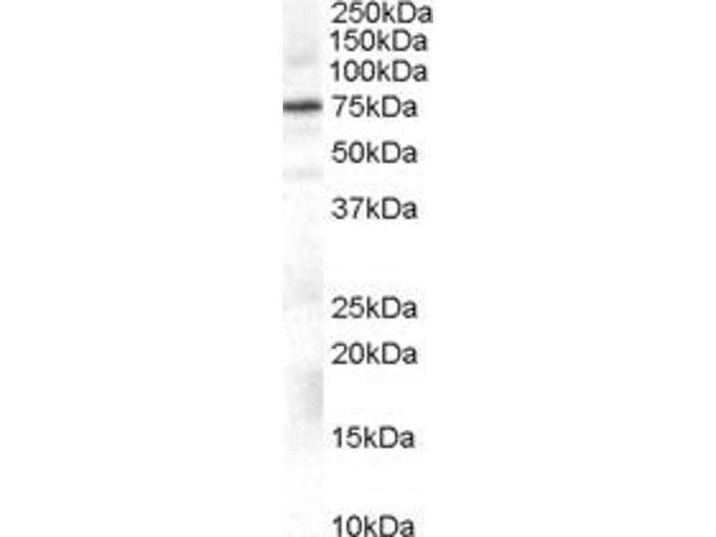 Western Blotting (WB) image for anti-Adrenergic, Beta, Receptor Kinase 1 (ADRBK1) antibody (ABIN251302)