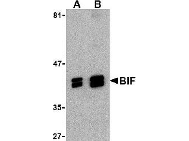 Western Blotting (WB) image for anti-SH3-Domain GRB2-Like Endophilin B1 (SH3GLB1) (C-Term) antibody (ABIN499465)