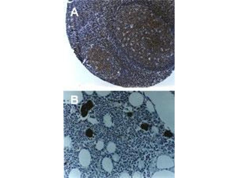 image for anti-TNF Receptor-Associated Factor 6 (TRAF6) (AA 451-469) antibody (ABIN957242)