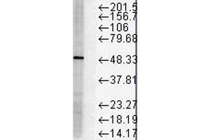 Western Blotting (WB) image for anti-FKBP5 antibody (FK506 Binding Protein 5) (ABIN361795)