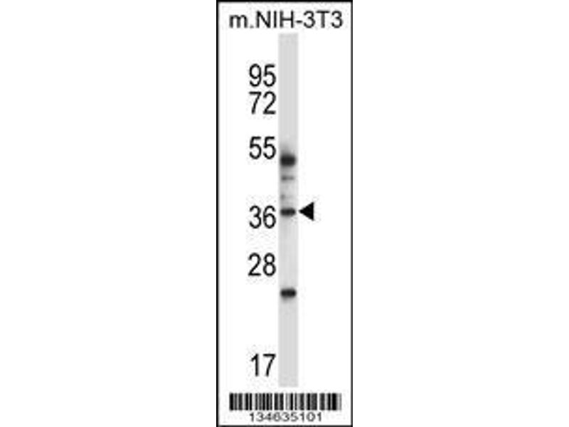 Western Blotting (WB) image for anti-Mitogen-Activated Protein Kinase 11 (MAPK11) (AA 1-30), (N-Term) antibody (ABIN657841)