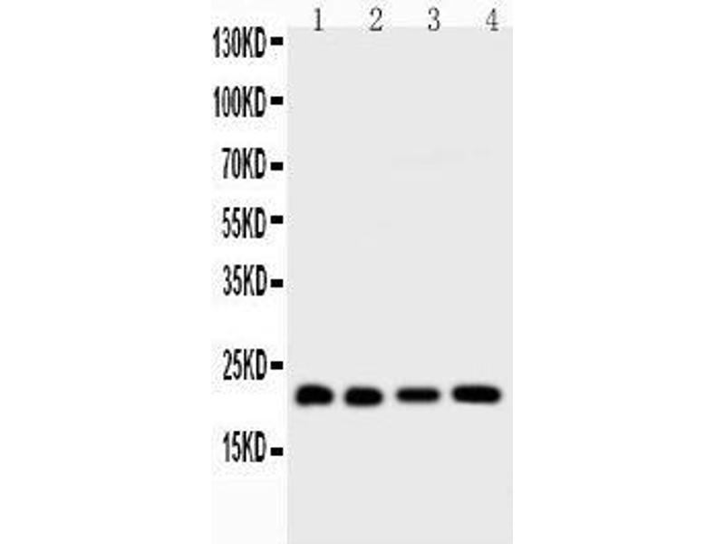 Western Blotting (WB) image for anti-BID antibody (BH3 Interacting Domain Death Agonist) (AA 1-195) (ABIN3042321)