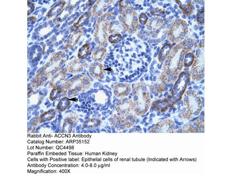 Immunohistochemistry (IHC) image for anti-Amiloride-Sensitive Cation Channel 3 (ACCN3) (N-Term) antibody (ABIN183138)
