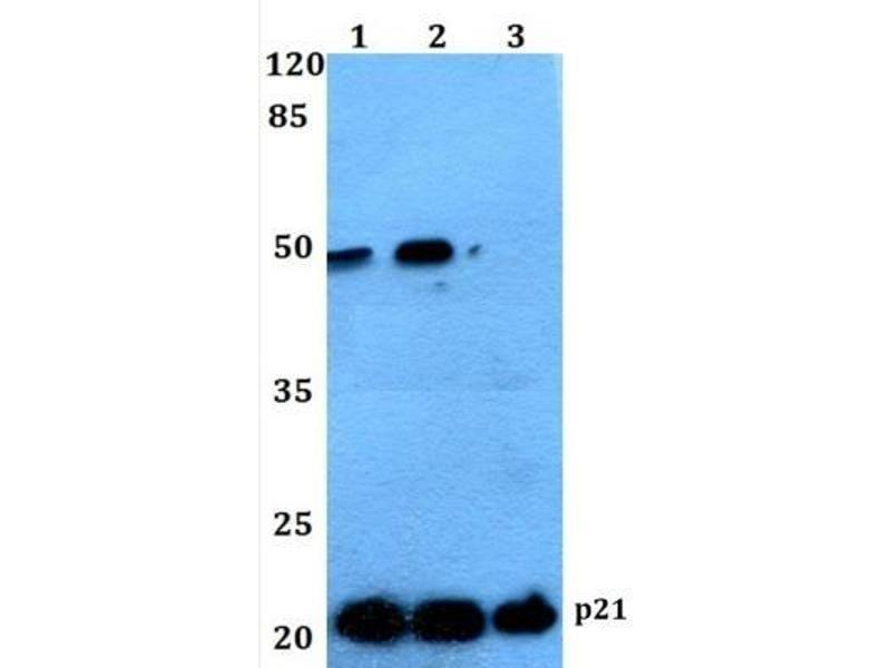 Western Blotting (WB) image for anti-Cyclin-Dependent Kinase Inhibitor 1A (p21, Cip1) (CDKN1A) antibody (ABIN4342318)