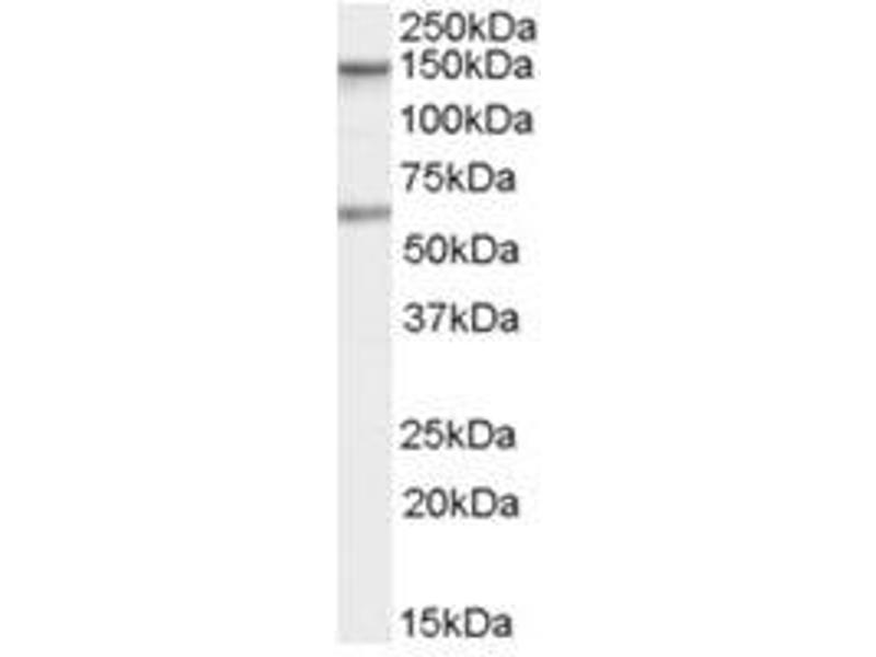 Image no. 1 for anti-CARD11 antibody (Caspase Recruitment Domain Family, Member 11) (C-Term) (ABIN374314)
