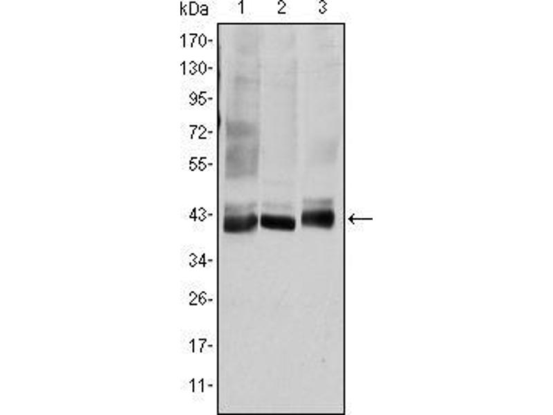 Western Blotting (WB) image for anti-MAP2K4 antibody (Mitogen-Activated Protein Kinase Kinase 4) (ABIN969268)