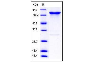 image for G Protein-Coupled Receptor Kinase 6 (GRK6) (AA 1-589) (Active) protein (GST tag,His tag) (ABIN2004756)