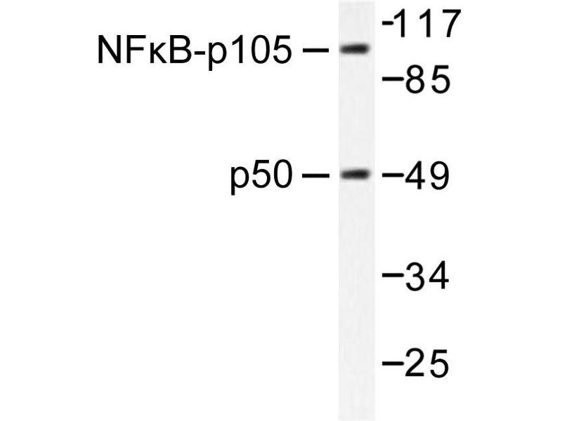 image for anti-NFKB1 antibody (Nuclear Factor of kappa Light Polypeptide Gene Enhancer in B-Cells 1) (ABIN271745)