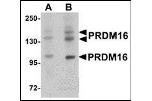 Image no. 2 for anti-PR Domain Containing 16 (PRDM16) (C-Term) antibody (ABIN500533)