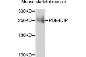 Image no. 4 for anti-phosphodiesterase 4D Interacting Protein (PDE4DIP) antibody (ABIN2737336)