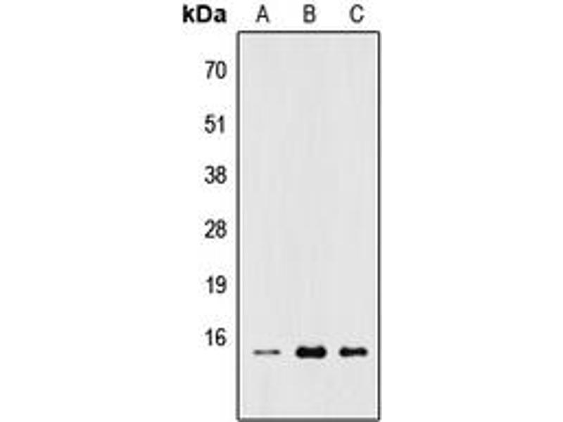 Image no. 2 for anti-Ribosomal Protein L22 (RPL22) (Center) antibody (ABIN2706978)