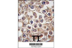 Immunohistochemistry (IHC) image for anti-INSRR antibody (Insulin Receptor-Related Receptor) (AA 16-47) (ABIN392004)