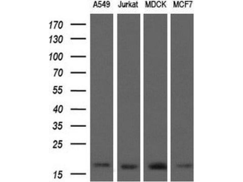Western Blotting (WB) image for anti-Actin Related Protein 2/3 Complex, Subunit 5, 16kDa (ARPC5) antibody (ABIN4281696)