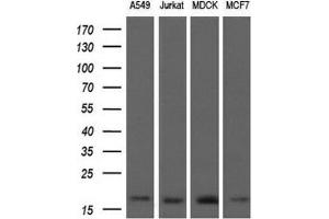 Western Blotting (WB) image for anti-ARPC5 antibody (Actin Related Protein 2/3 Complex, Subunit 5, 16kDa) (ABIN4281696)