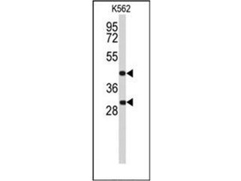 Western Blotting (WB) image for anti-DFFA antibody (DNA Fragmentation Factor, 45kDa, alpha Polypeptide) (C-Term) (ABIN951895)