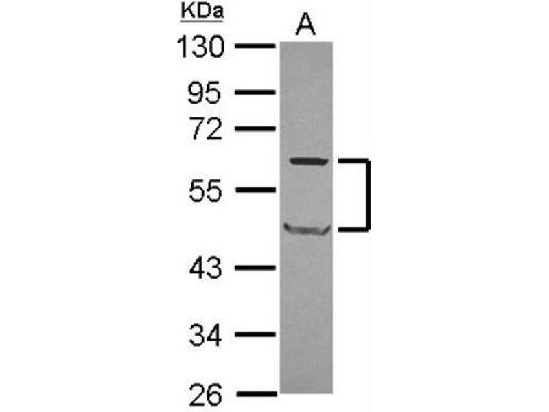 Western Blotting (WB) image for anti-Caspase 8 Antikörper (Caspase 8, Apoptosis-Related Cysteine Peptidase) (Center) (ABIN4288172)