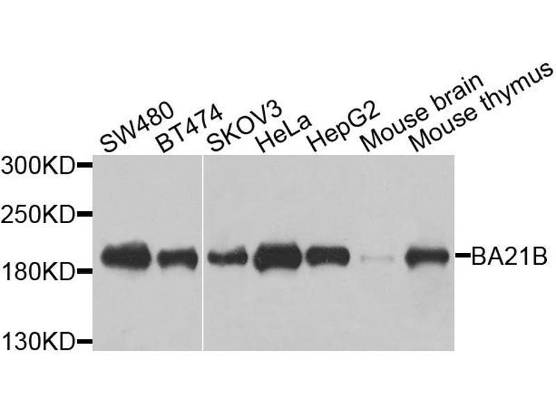 Western Blotting (WB) image for anti-Bromodomain Adjacent To Zinc Finger Domain, 1B (BAZ1B) antibody (ABIN5963000)