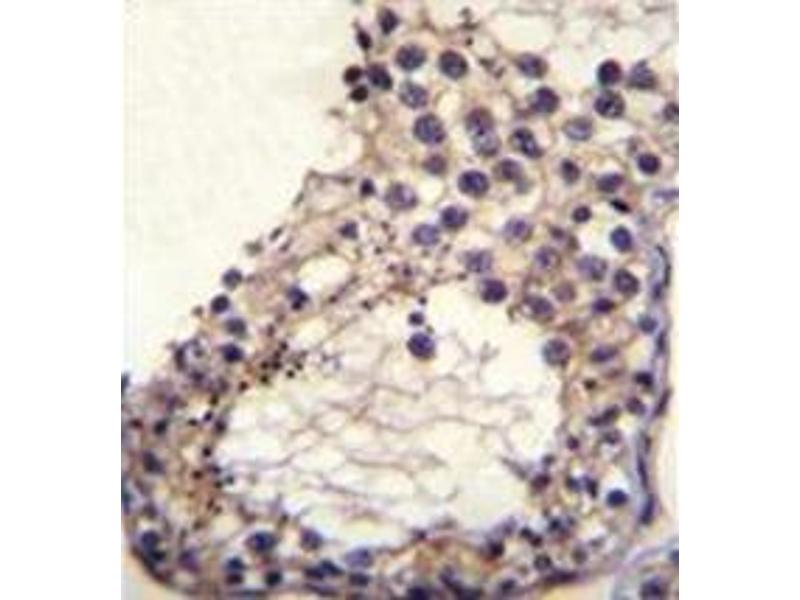 Immunohistochemistry (Paraffin-embedded Sections) (IHC (p)) image for anti-Otoancorin (OTOA) (AA 99-127), (N-Term) antibody (ABIN953947)