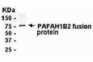 Image no. 1 for anti-Platelet-Activating Factor Acetylhydrolase 1b, Catalytic Subunit 2 (30kDa) (PAFAH1B2) (AA 1-229) antibody (ABIN2468190)