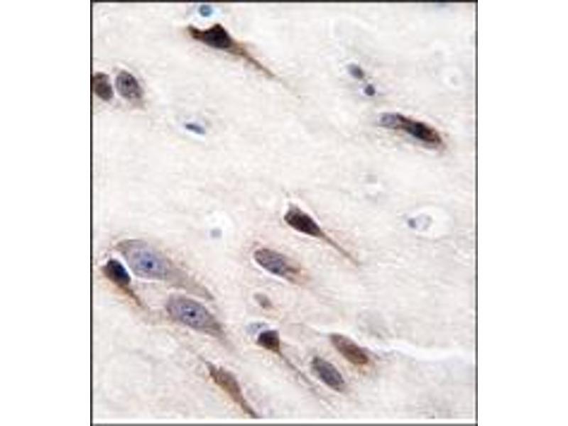 image for anti-Enolase 2 (Gamma, Neuronal) (ENO2) antibody (ABIN357944)