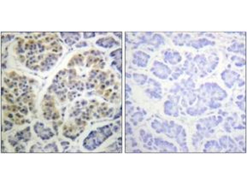Immunohistochemistry (IHC) image for anti-YWHAQ antibody (tyrosine 3-Monooxygenase/tryptophan 5-Monooxygenase Activation Protein, theta Polypeptide) (pSer232) (ABIN1531476)