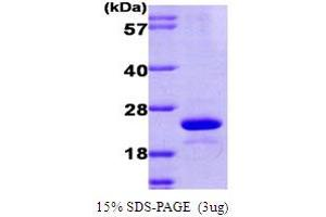 Image no. 1 for Ubiquitin-Conjugating Enzyme E2L 6 (UBE2L6) (AA 1-152) protein (His tag) (ABIN667729)