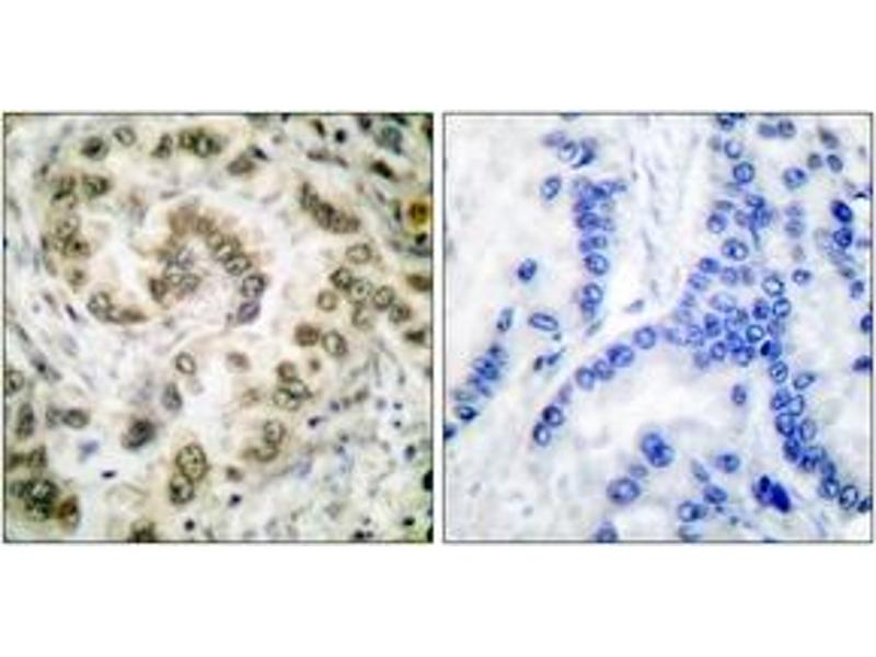 Immunohistochemistry (IHC) image for anti-E2F Transcription Factor 4, P107/p130-Binding (E2F4) (AA 51-100) antibody (ABIN1533259)