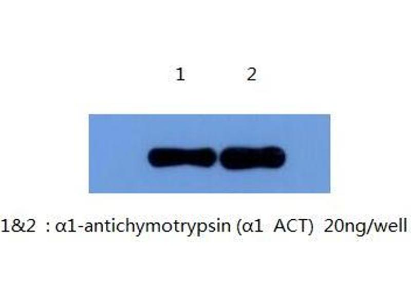 ouchterlony double diffusion protocol pdf