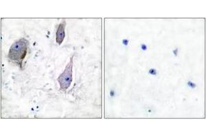 Image no. 2 for anti-Peripheral Myelin Protein 22 (PMP22) (AA 111-160) antibody (ABIN1533382)