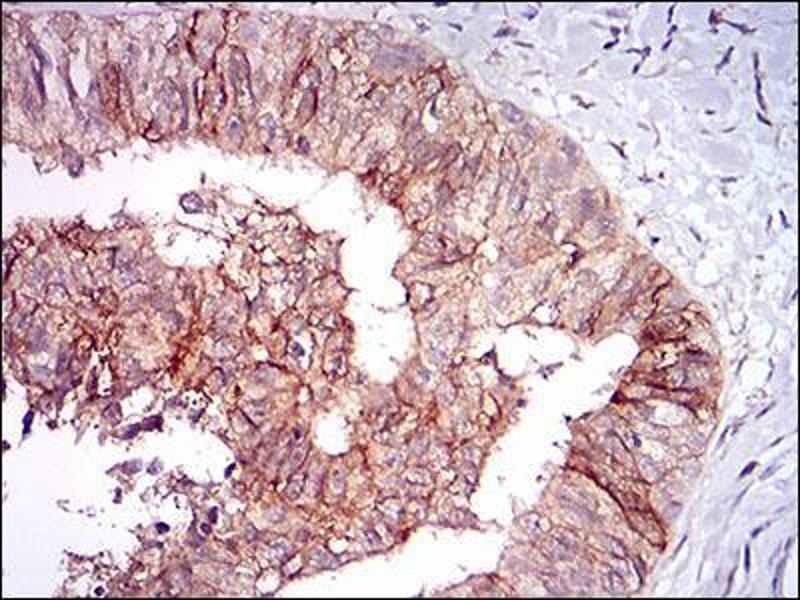Immunohistochemistry (IHC) image for anti-tyrosine Kinase with Immunoglobulin-Like and EGF-Like Domains 1 (TIE1) (AA 385-607) antibody (ABIN2683015)