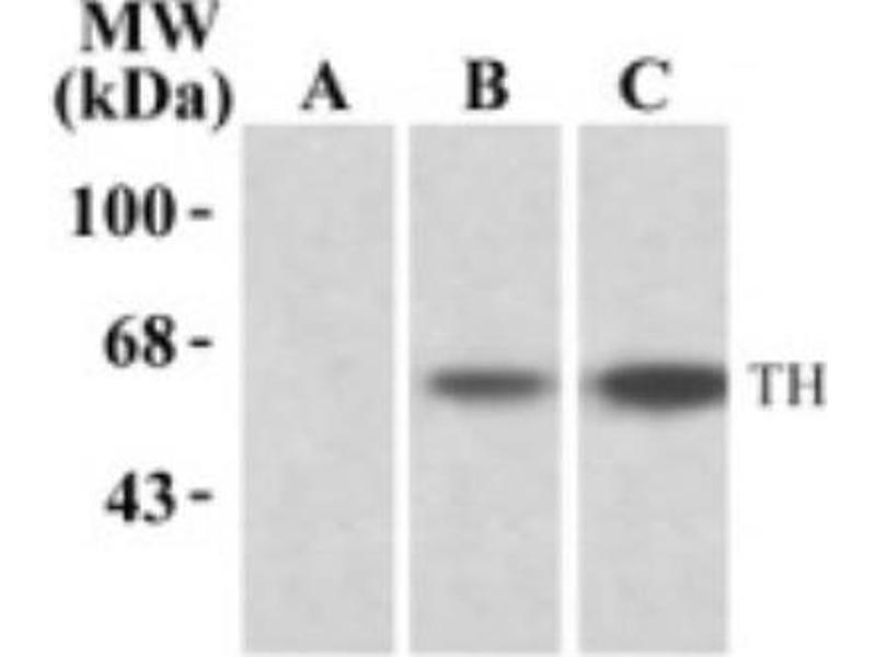 Western Blotting (WB) image for anti-tyrosine Hydroxylase (TH) (pSer19) antibody (ABIN152553)