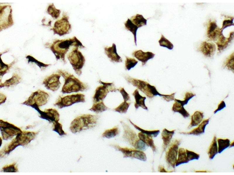 Immunohistochemistry (IHC) image for anti-PDK2 antibody (Pyruvate Dehydrogenase Kinase, Isozyme 2) (AA 379-392) (ABIN3044044)