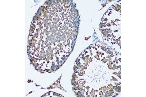 Immunohistochemistry (Paraffin-embedded Sections) (IHC (p)) image for anti-Farnesyl-Diphosphate Farnesyltransferase 1 (FDFT1) antibody (ABIN2968799)
