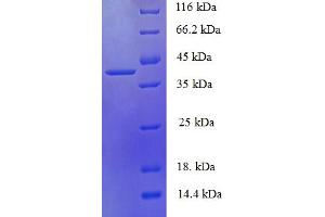 Image no. 1 for phosphohistidine Phosphatase 1 (PHPT1) (AA 1-125), (full length) protein (GST tag) (ABIN5710093)