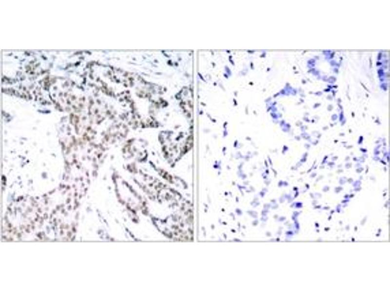 Immunohistochemistry (IHC) image for anti-STAT3 antibody (Signal Transducer and Activator of Transcription 3 (Acute-Phase Response Factor)) (pSer727) (ABIN1531975)