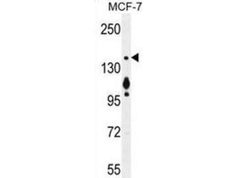 Western Blotting (WB) image for anti-Myosin VI (MYO6) antibody (ABIN2996261)