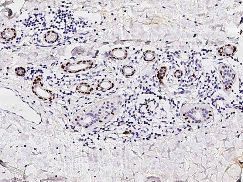 Immunohistochemistry (IHC) image for anti-p63 Antikörper (Tumor Protein P63) (N-Term) (ABIN2682709)