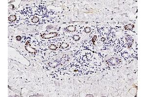 Image no. 2 for anti-Tumor Protein P63 (TP63) (N-Term) antibody (ABIN2682709)