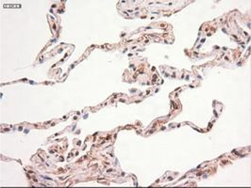 Image no. 4 for anti-Myc Proto-Oncogene protein (MYC) antibody (ABIN1497013)