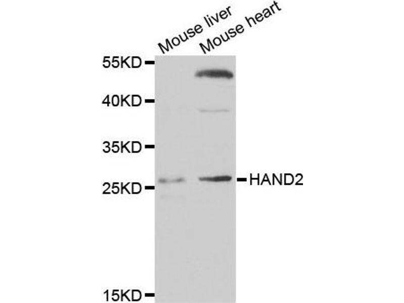 heart and neural crest derivatives expressed protein 2 Heart- and neural crest derivatives-expressed protein 2 is a protein that in  humans is encoded by the hand2 gene contents [hide] 1 function 2  interactions.