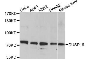 Image no. 1 for anti-Dual Specificity Phosphatase 16 (DUSP16) antibody (ABIN6566797)
