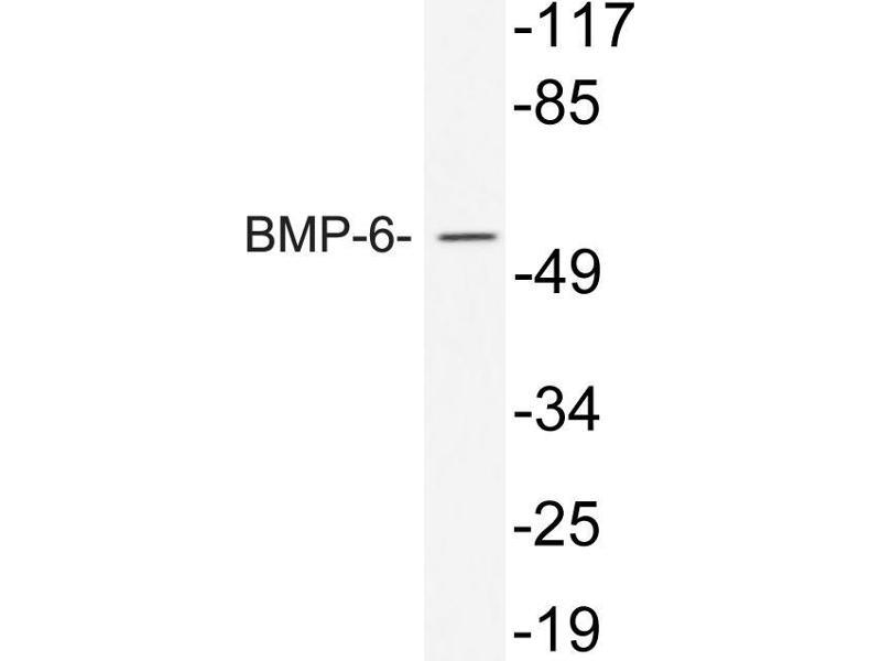 Western Blotting (WB) image for anti-Bone Morphogenetic Protein 6 (BMP6) antibody (ABIN498475)