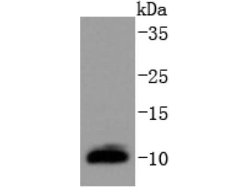 Western Blotting (WB) image for anti-Dynein, Light Chain, LC8-Type 1 (DYNLL1) (N-Term) antibody (ABIN5949168)