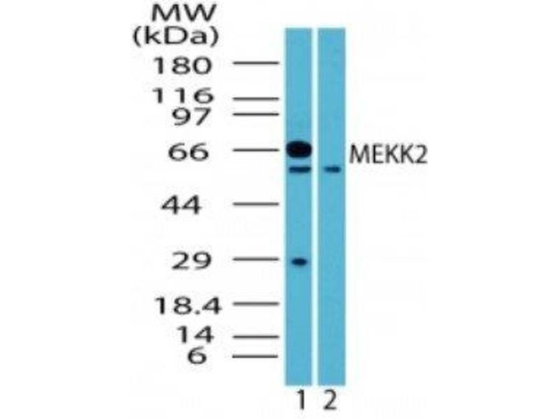 Western Blotting (WB) image for anti-MAP3K2 antibody (Mitogen-Activated Protein Kinase Kinase Kinase 2) (ABIN4333537)